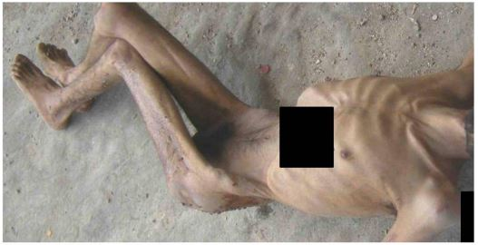 Image from report on torture and killing in Syria Jan 22, 2013