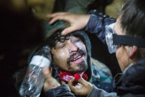 Water protector being treated by a medic after being tear gassed. Photo: Adam Alexander Johansson.